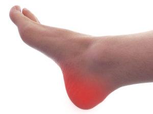 Neuralgia Baxtera jako jedna z przyczyn bólu pięty