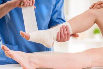 Ból haluksa po operacji - jak sobie radzić