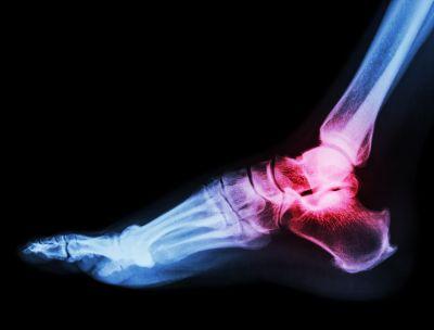 Brak zrostu po artrodezie stopy