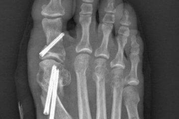 Zrastanie kości po operacji haluksa