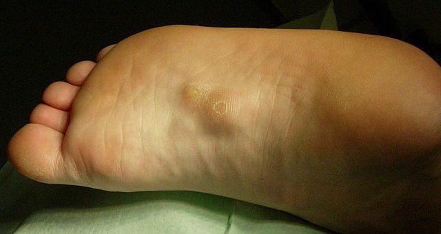Choroba Ledderhose'a – włókniakowatość rozcięgna podeszwowego