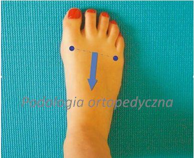 ćwiczenie na płaskostopie, krótka stopa