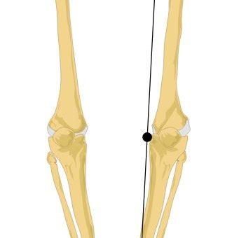 Diagnostyka stóp u pacjentów zakwalifikowanych do zabiegu endoprotezy kolana