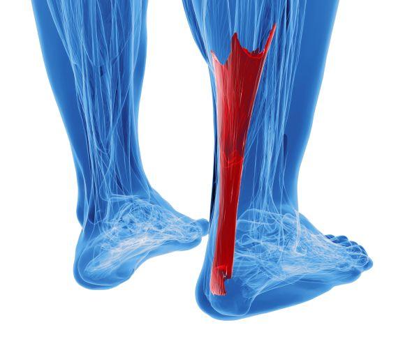 Tendinopatia przyczepu ścięgna Achillesa