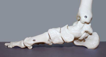 System stabilizacji stopy – podstawy