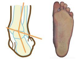 stopa płasko-koślawa